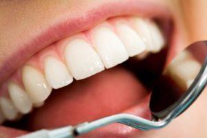 CHto takoe lechenie zubov po programme OMS