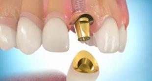 Какой смысл делать имплантацию зубов?