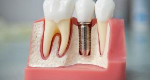 Имплантацию зубов