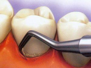 Зубной налёт: как от него избавиться?
