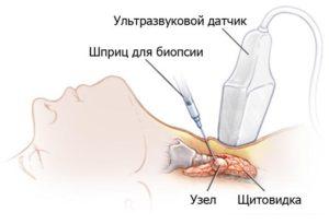 Biopsia schitovidnoy zhelezy