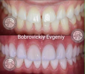 Виниры в Киеве на зубы в стоматологии Люми-Дент
