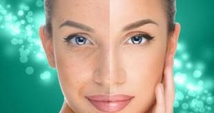 Омоложение кожи лица фототерапией на аппарате BBL